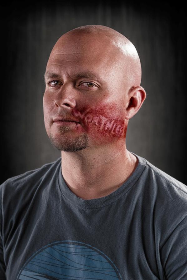 آثار الإعتداء اللفظي